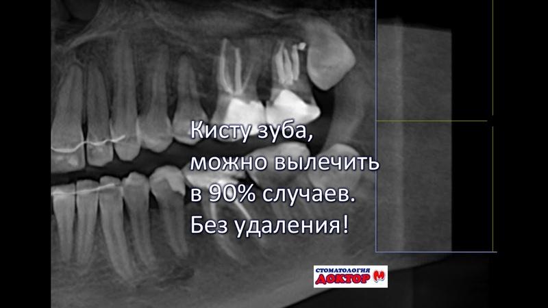 Лечение кисты зуба возможно в 90% без удаления