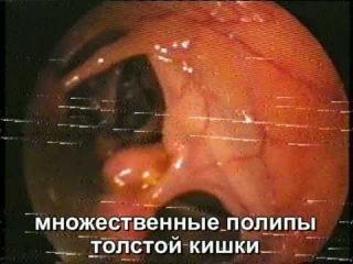 Грязный кишечник