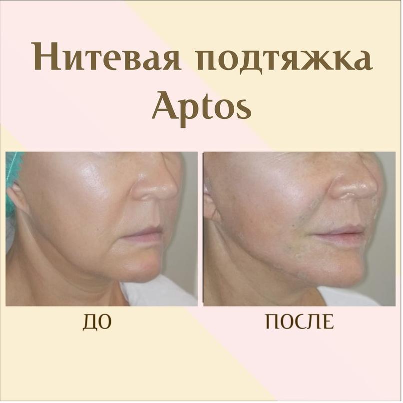 Коррекция в зоне нижней челюсти., изображение №12