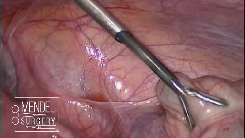 Лапароскопия при удушении кишечника