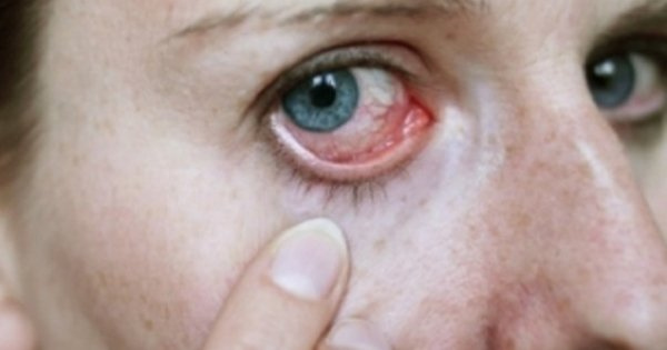 din cauza vederii slabe îi strânge ochii modul în care 3 v afectează vederea