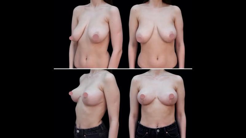 Подтяжка груди без имплантов в Клинике Эпиона Медикус маммопластика мастопексия уменьшениегруди